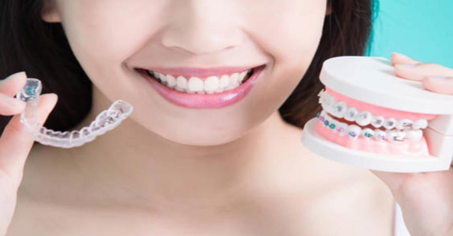 Are Traditional Braces Cheaper than Invisalign?