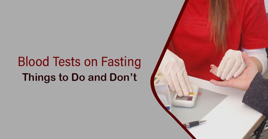 Blood Tests on Fasting
