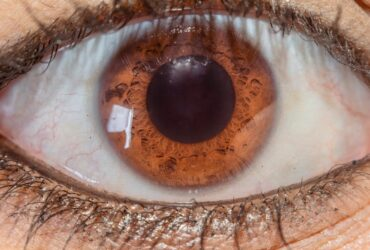 What Type of Lens is Present in Human Eye