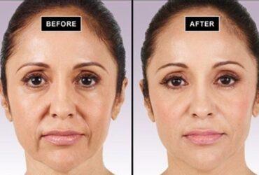 Facelift Toronto surgeries