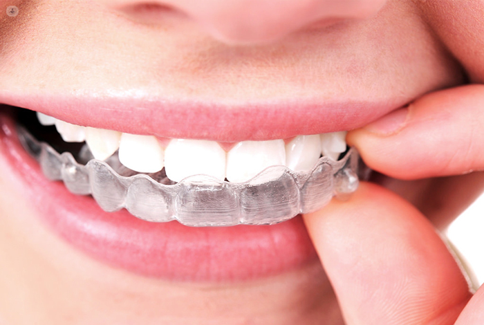 What Are The Different Types Of Braces?